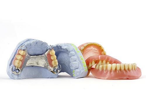 same day dentures at Sabeti Cosmetic Dentistry